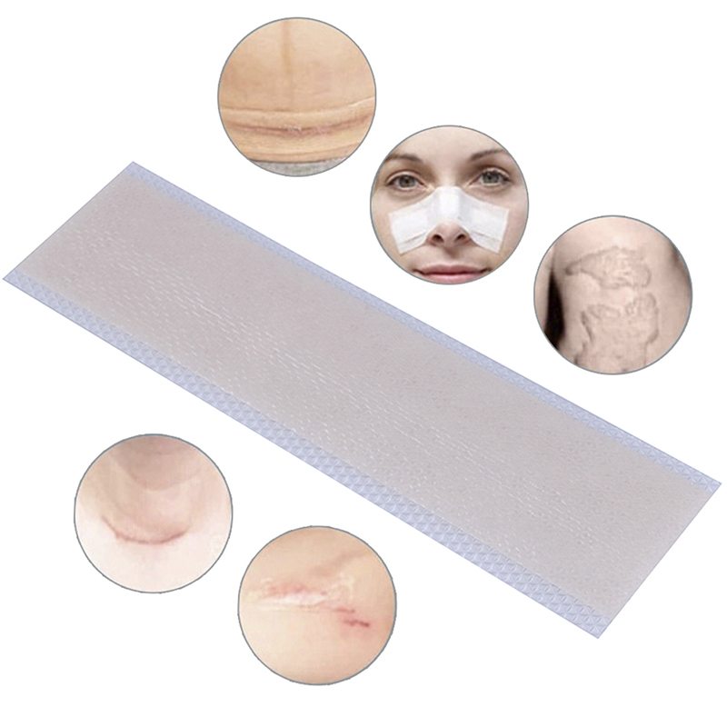 1pcs Silicone Scar Removal Patch Remove Trauma Burn Scar Sheet Skin Repair Scar Removal Therapy Patch For Acne Scar Treatment