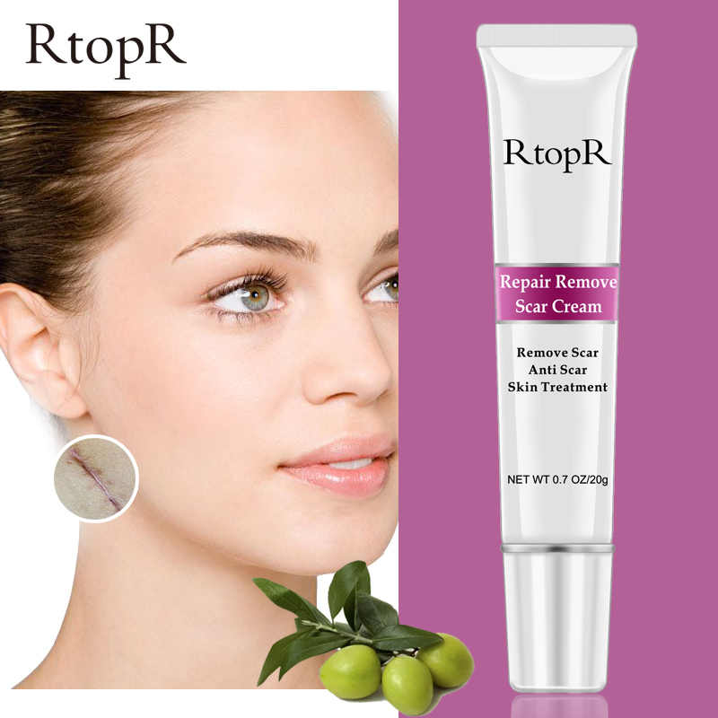 RtopR Acne Scar Stretch Marks Remover Cream Skin Repair Face Cream Acne Spots Acne Treatment Blackhead Whitening Cream Skin Care