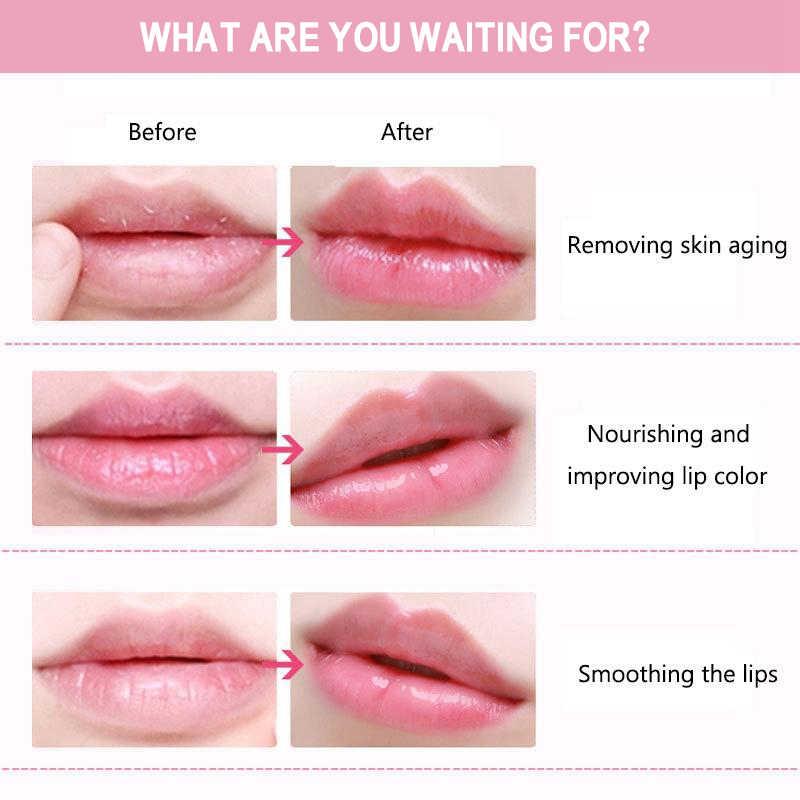 תיקוני שפתיים-מסכות שיפור קולגן-מזין שפות-טיפול נגד קמטים לחות חדש-amival שפתני ללחלח רפידות עורות טיפול