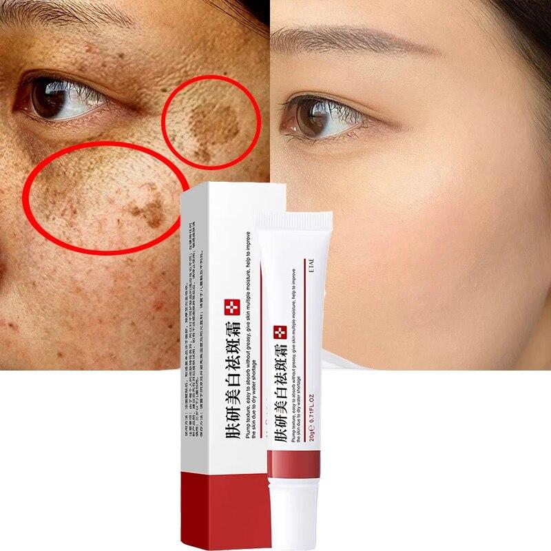 Эффективный крем для отбеливания веснушек удаления мелазмы для удаления шрамов от акне, пигмент меланин темных пятен пигментации увлажняющий гель для ухода за кожей