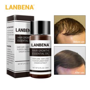 LANBENA szybki potężny produkt esencja na porost włosów olejek płynny zabieg zapobiegający utrata włosów pielęgnacja włosów Andrea 20ml tanie i dobre opinie 20180005 Produkt wypadanie włosów Ginger Extract Ginseng Extract Fleeceflower Root Grape SeedOil 180305
