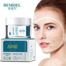 HEMEIEL traitement de lacné crème pour le visage Anti acné enlèvement des cicatrices bouton point noir hydratant blanchir huile contrôle rétrécissement Pores soins de la peau