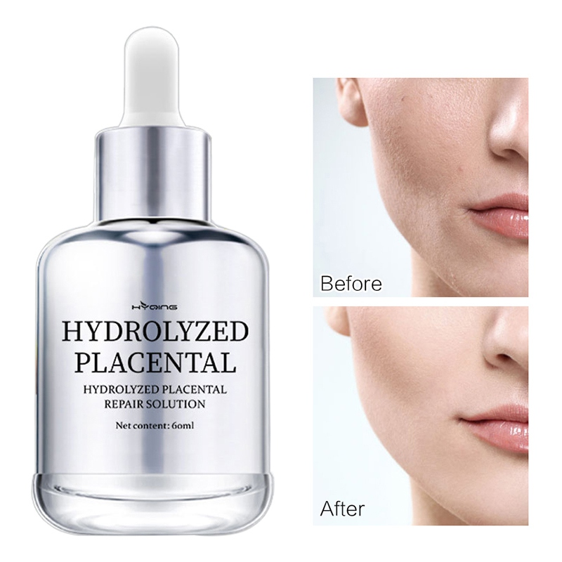 Hyaluronic Acid Face Serum Facial Whitening Anti-Wrinkle Repair Liquid Face Care Acne Scar Removal Shrink Pores Cream