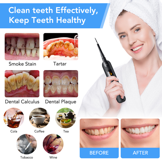 5pcs/set Electric Ultrasonic Dental Scaler Tooth Calculus Tool Sonic Remover Stains Tartar Plaque Whitening Oral Cleaner Machine