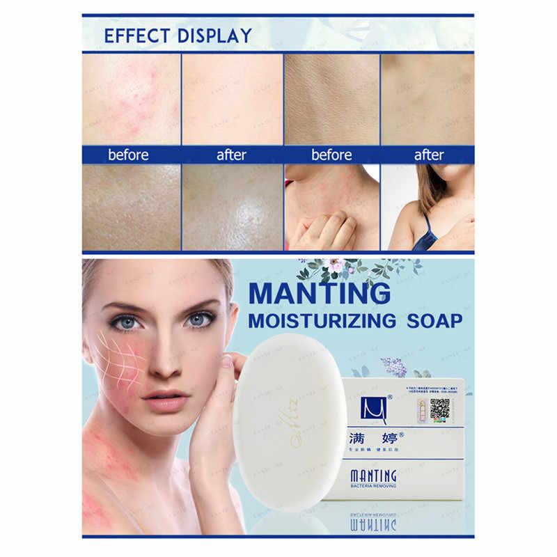 Ekstraksi Tanaman Inhibitor Sabun Pembersih untuk Laki-laki dan Perempuan Digunakan untuk Membersihkan Kulit Melawan Bintik Hitam dan Menghapus Tungau Mengurangi melanin