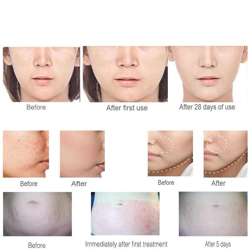 Dr. pen N2-C aparelho sem fio para cuidados com a pele, máquina elétrica de mesoterapia para tatuagem, derma, tatuagem, beleza facial