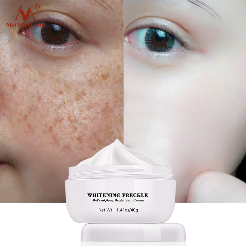 Powerful Whitening Freckle Cream Remove  Acne Spots Melanin Dark Spots Face Lift Firming Face Skin Care Beauty Essentials-1