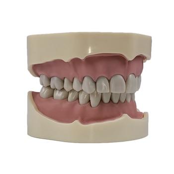 1pc Dental Study Teeth Jaw Model with Screw Fixed Teeth Model with 28/32 Pieces Teeth for Dental education Using dental school dental diseases model dental lesions series model