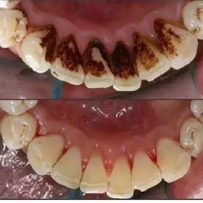 Rumah Rumah Tangga Ultrasound Lab Gigi Kebersihan Mulut Gigi Perawatan Gigi Tartar Remover Menghapus Whitening Pemutih Perangkat