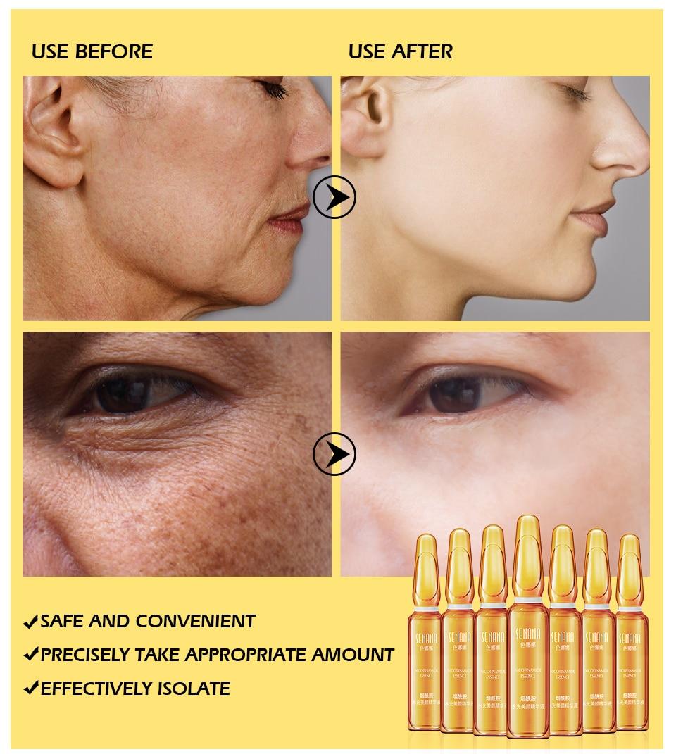 Super Sale #UVV SENANA Face serum skin whitening essence ...