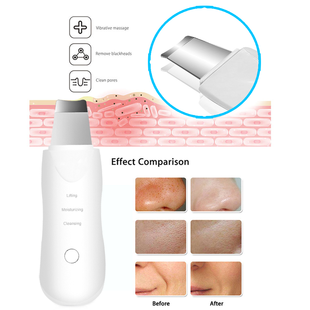 Ultrasonic Vibration Deep Face Cleaning Skin Scrubber Facial Steamer Nano Sprayer Humidifier Remove Dirt Blackhead Wrinkles
