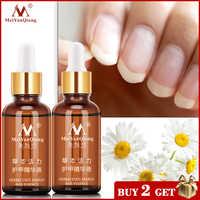 2Piecses/lot Nail Fungus Treatment / Onychomycosis Paronychia / Anti Fungal Nail Infection Good Result Chinese Herbal Toe Nail