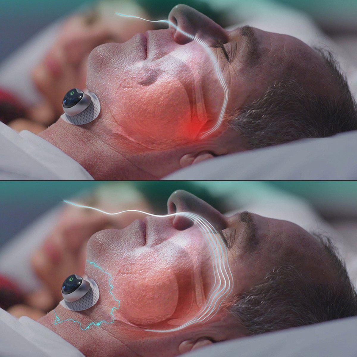 Новая умная Пробка От Храпа стоп биодатчик Храпа Анти Храп Спящая помощь с приложением и монитор сна устройство помощи сна CPAP Замена - 5