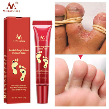 Herbal Effective Foot Cream Treatment Anti Fungal Infection Onychomycosis Paronychia Toe Fungus Gel Repair Dry Crack Feet Care