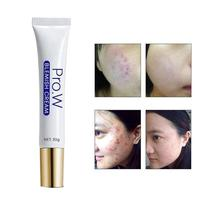 Extract Acne Scar Removal Cream Wounds Scars Stretch Marks Treatment 3