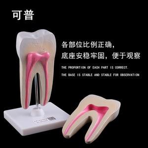 Image 4 - Giải Phẫu Người Răng Hàm Mở Rộng Mô Hình Khỏe Mạnh Lớn Cấu Trúc Răng Nha Khoa Oral Giảng Dạy Khuôn Trang Trí