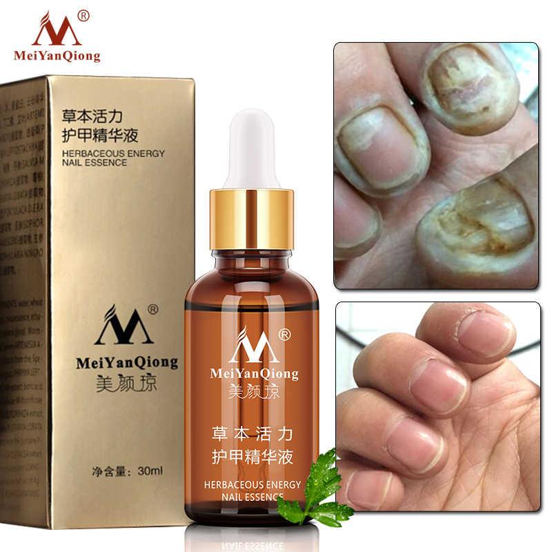 เล็บป้องกันเชื้อรา Feet Care Essence เล็บฟอกสีฟันเล็บเท้ากำจัดเจล Anti Infection Paronychia Onychomycosis