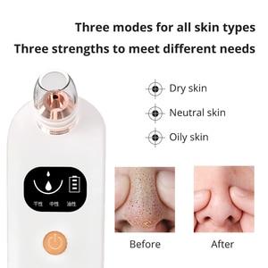 Image 3 - Darsonval ferramentas removedor de cravo para acne poros cleaner beleza cuidados com o rosto blackhead aspirador de pó preto pontos espinha removedor ferramenta