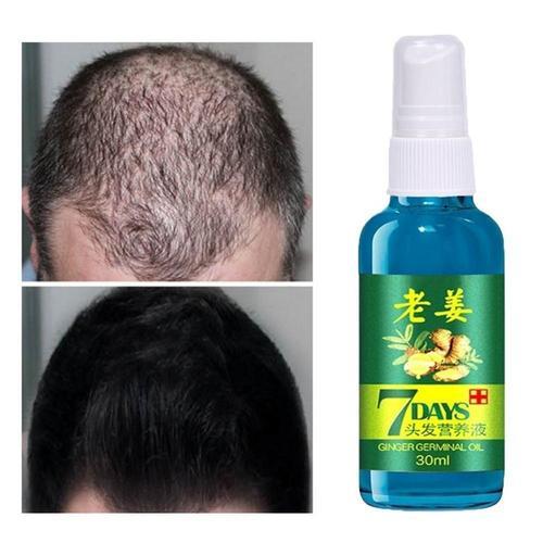 2019 Hair Care Products Factory Direct Hair Growth Natural Beauty Hair Growth Liquid Hair Growth Essential Karachi