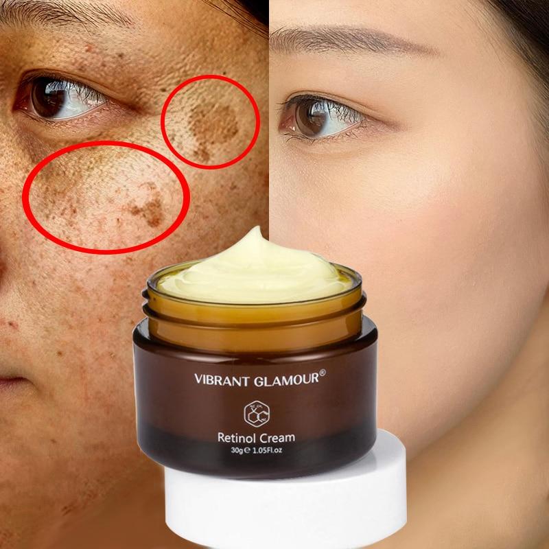 Эффективный отбеливающий крем, ретинол, удаляет акне, пятна, пигмент, темные пятна, пигментации, увлажняющий гель для ухода за кожей