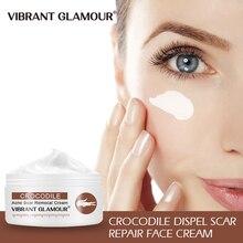цена на VIBRANT GLAMOUR Crocodile Repair Scar Cream Removal Acne Scar Treatment Stretch Marks Burn Whitening Knife Scar Skin Care new