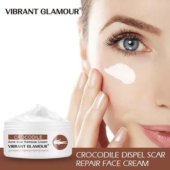 VIBRANT GLAMOUR Crocodile Repair Scar Cream Removal Acne Scar Treatment Stretch Marks Burn Whitening Knife Scar Skin Care new aerocool scar