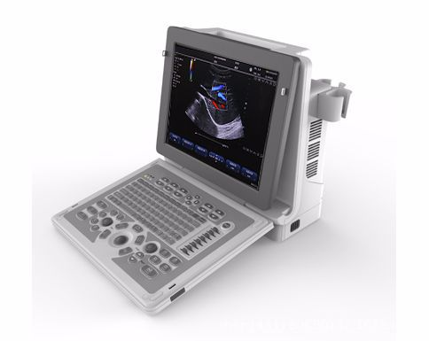 Portable Color Doppler Machine | Four-dimensional Color Doppler Ultrasonography | Three-dimensional Ultrasound Diagnostic Appara