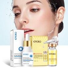 1 Bottle Whitening Face Serum Acne Removal Face Skin Care Essence Repair Moisturizing Face Cream Anti Aging Serum Shrink Pores цены онлайн