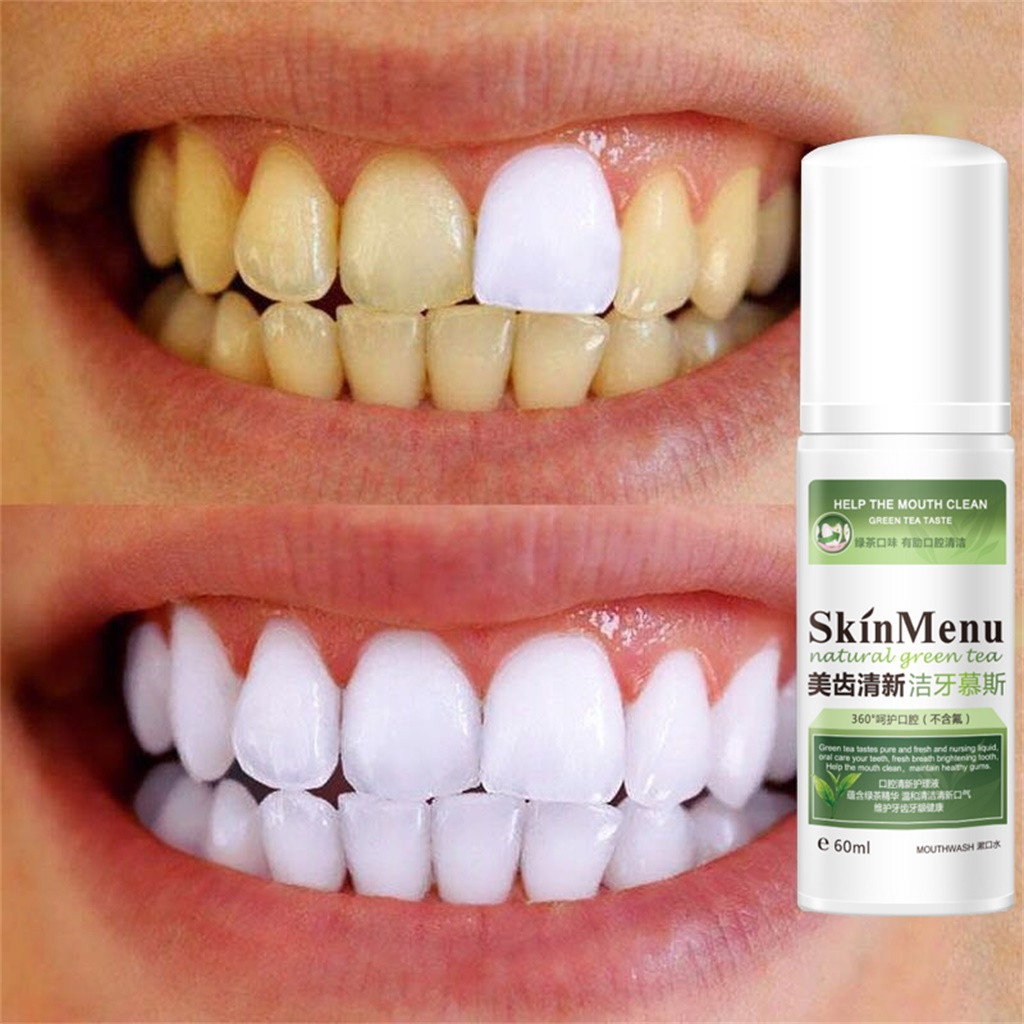 60ml Whitening Toothpaste Mousse Spray Stain Removal Whitening