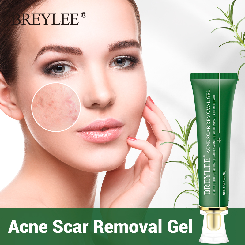 BREYLEE Acne Scar Removal Gel Fade Acne Marks Spots Remove Skin Pigmentation Soothing Prevent Acne Treatment Serum Essence 30g
