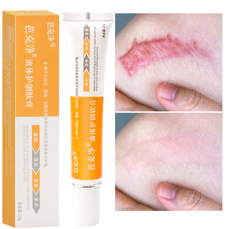 Acne Scar Removal Face Cream Acne Spots Acne Pigmentation Corrector Anti Scar Stretch Marks Repair Skin Care