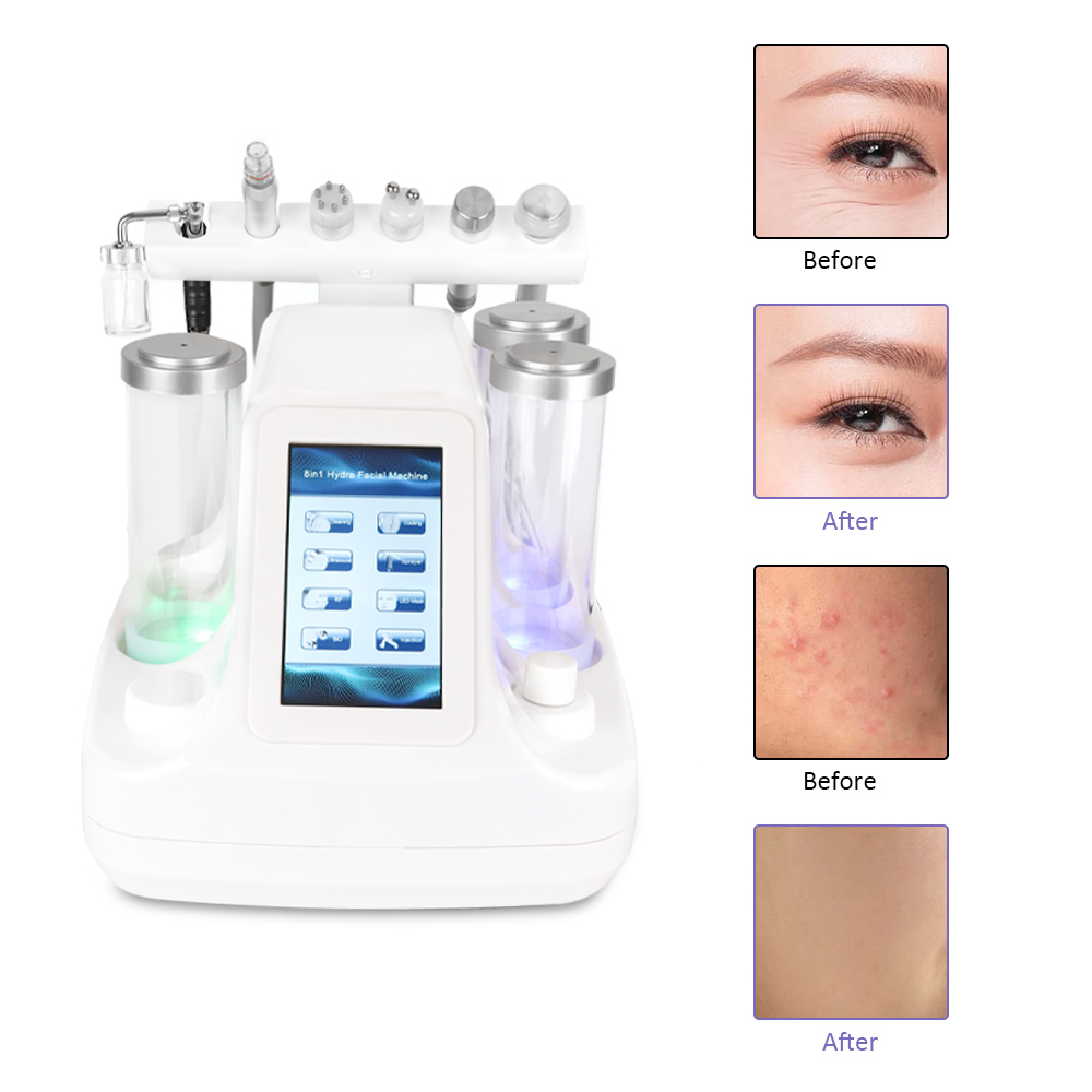 6 In 1 Small Bubbles Ultrasonic RF Hydra Deep Facial Ance Pore Cleaner Facial Massage Machine BIO Light Skin Care Device