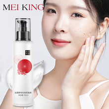 MEIKING Removal Face Exfoliating Shrink pores removal Blackhead skin care for face and body moisturizing Whitening Gel