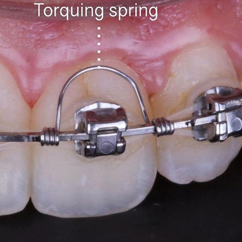 NSKLED 10Pcs/bag Orthodontic Torque Spring Orthodontic Spring Stainless Steel Single Anterior Teeth Torque Rectangular Springs