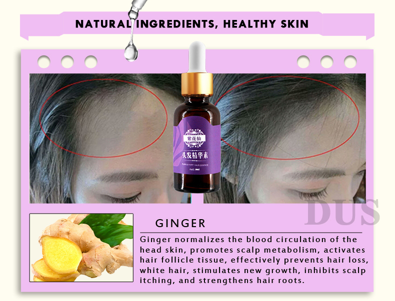3pcs/lot PURPLE Hair Growth Essential Oils Essence Anti Hair Loss Treatment Fast Hair Growth Liquid Dense Beauty Hair Care