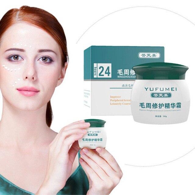 Face Body Lotion Skin Repair Body Cream Chicken Skin Anti Wrinkle Anti-Aging Skin Repair Cream Remove Acne Dropshipping ZJXM2 5