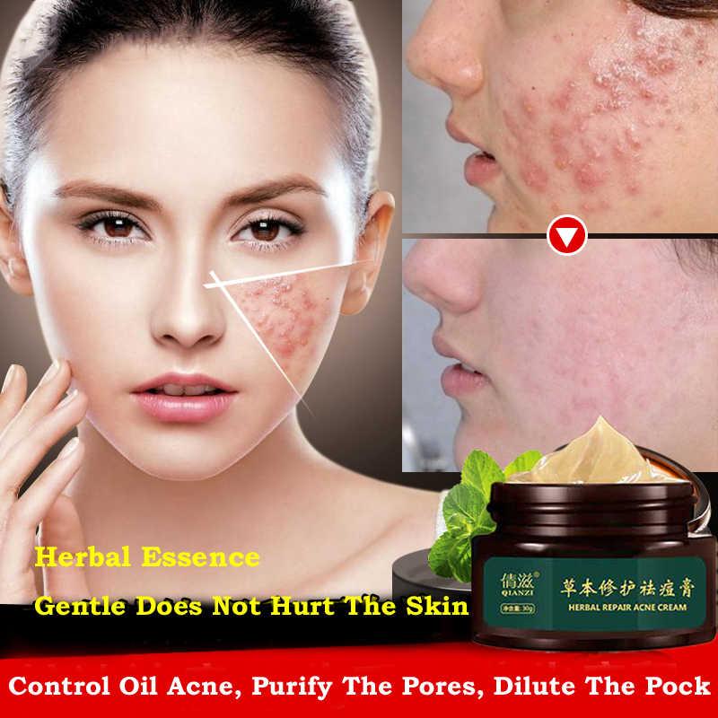 Pflanzliche Akne Creme Anti Pickel Spot Akne Narben Mitesser Entfernung Creme Bleaching Schönheit Haut Gesicht Pflege Cremes Akne Treament
