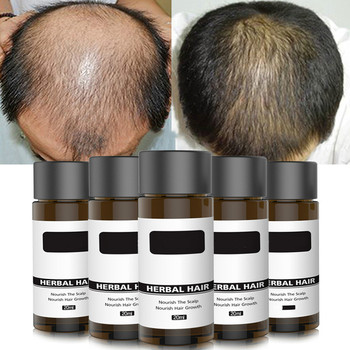 20ml Fast Hair Growth Ginger Hair Serum Essential Oils Dense Hair Growth Serum Hair Care Prevent Baldness Loss Serum image