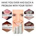 Комплект для временного наполнения зубов, зазоры для зубов, материал для замена, не хватает зубов, 50 г