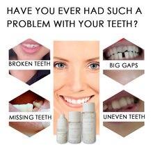 50g kit de reparação de enchimento de dente temporário dentes lacunas material temp substituir dentes faltando reparação dentadura adesivo