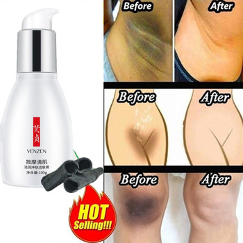 Whitening Cream Body Lotion Dark Spots Melasma Lightening Black Joints Knees Ankle Underarm Whitening For Axillary Private Parts 1