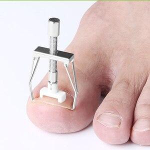 Image 2 - New Ingrown Nail Recover Correction Pedicure Toenail Fixer Ingrown Foot Nails Care Tool Orthotic Toe Nail Corrector Tool