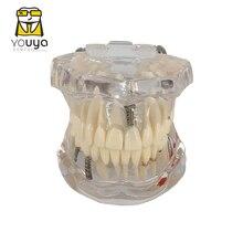 Прозрачная модель зубных протезов, модель зубного импланта, обучение стоматолога, студентов, обучение, коммуникация по исследованиям
