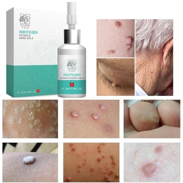 10ml Skin Tag Remover Liquid Warts Plaster Corns Treatment Antibacterial Liquid Relieve Pressure Little Moles Warts Eye 1