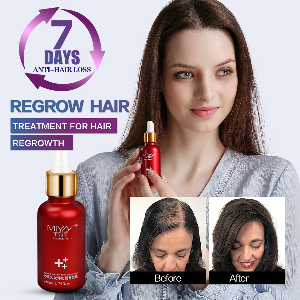 Fast Hair Growth Essence Oil Hair Loss Treatment Natural Healthy Extract Help For Hair Growth Hair Care Products 30ml