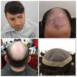 Hstonir афра системы замены волос моно Кружево и pu поли вокруг природного Цвет конский волос мужские часть волос со H008