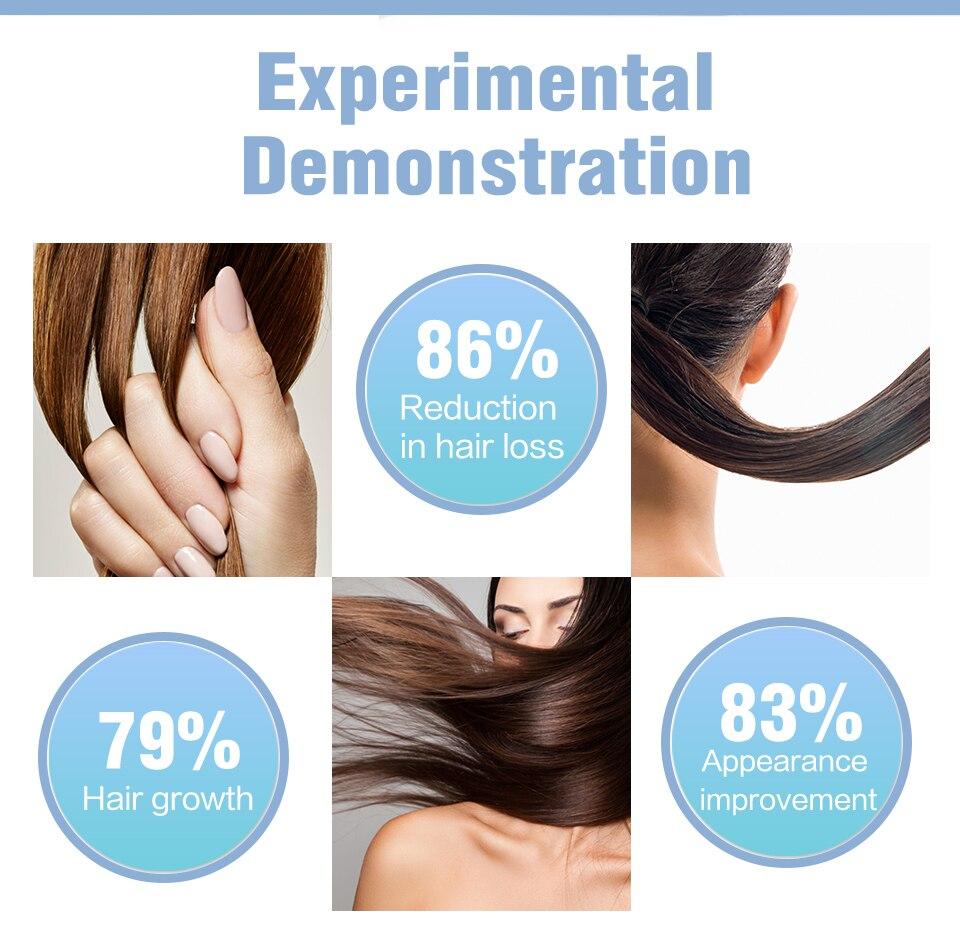 cabelo spray para rápido crescimento do cabelo produtos