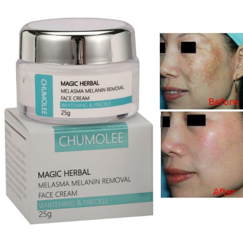 CHUMOLEE Strong Whitening Cream Freckle Cream Remove Melasma Acne Dark Pigment Spots Melanin Pimple Cream Face Cream Skin Care