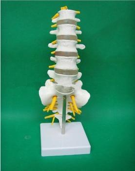 1:1 Human Lumbar Model Spine Lumbar Spine with Coccyx Model Lumbar Bone Lesions Model Teaching Supplies Spine Skeleton Models фото