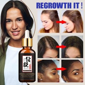 Utrata włosów produkty do szybkiego wzrostu włosów leczenie włosów esencja oleju naturalne ekstrakty płynne produkty do pielęgnacji włosów produkty do odrastania tanie i dobre opinie 20160005 Produkt wypadanie włosów Polygonum multiflorum root 1 bottle 30ml yfl01